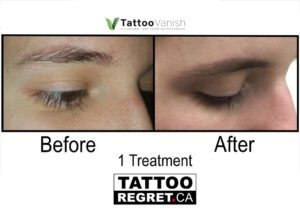 Before and After Tattoo Removal - Get the Best Res (10)