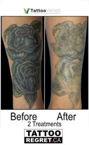 Before and After Tattoo Removal - Get the Best Res (14)
