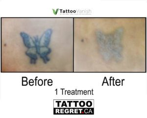 Before and After Tattoo Removal - Get the Best Res (18)