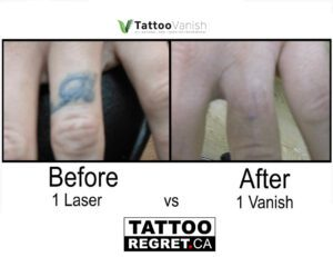 Before and After Tattoo Removal - Get the Best Res (19)