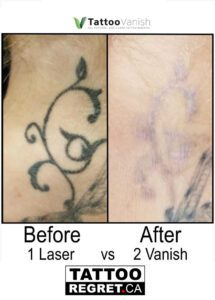 Before and After Tattoo Removal - Get the Best Res (21)