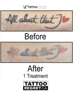 Before and After Tattoo Removal - Get the Best Res (22)