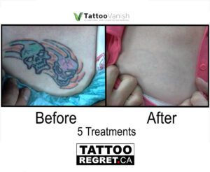 Before and After Tattoo Removal - Get the Best Res (23)