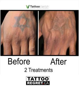 Before and After Tattoo Removal - Get the Best Res (24)