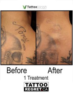Before and After Tattoo Removal - Get the Best Res (26)