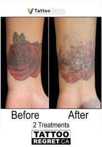 Before and After Tattoo Removal - Get the Best Res (27)