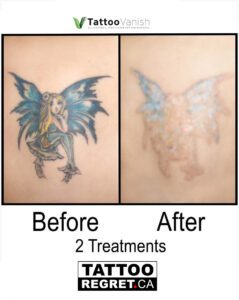 Before and After Tattoo Removal - Get the Best Res (28)
