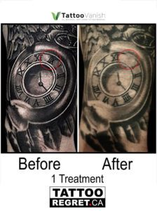 Before and After Tattoo Removal - Get the Best Res (29)