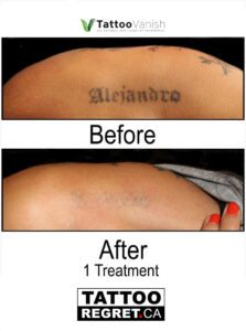 Before and After Tattoo Removal - Get the Best Res (32)