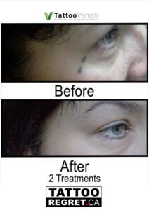 Before and After Tattoo Removal - Get the Best Res (33)