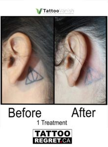 Before and After Tattoo Removal - Get the Best Res (43)