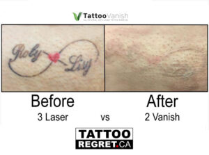 Before and After Tattoo Removal - Get the Best Res (5)
