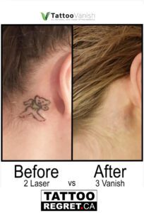 Before and After Tattoo Removal - Get the Best Res (8)