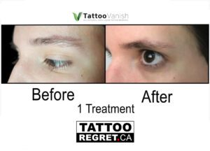 Before and After Tattoo Removal - Get the Best Res (9)